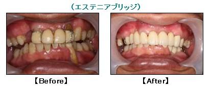 入れ歯を入れなくて良かった編(2)