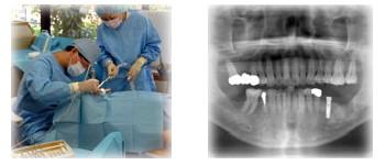 インプラント治療の流れ(4)