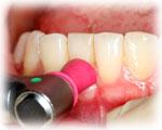 STEP3.歯周病初期治療(5)