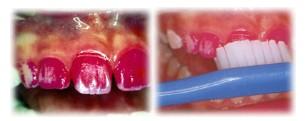 歯垢(プラーク)・歯石除去